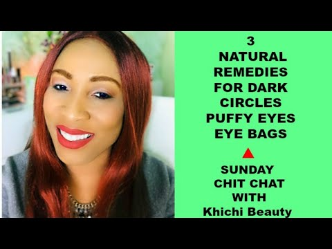 3 NATURAL REMEDIES FOR DARK CIRCLES PUFFY EYES AND EYE BAGS |Khichi Beauty