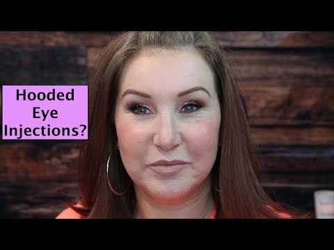 Finally Happy with my Eyes?! – Hooded Eye Surgery Fail