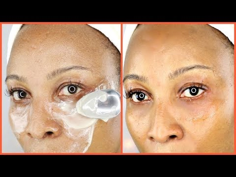 USE THIS POWERFUL TRICK TO GET RID OF DARK CIRCLES, PUFFY EYES, WRINKLES AND EYE BAGS EFFECTIVELY