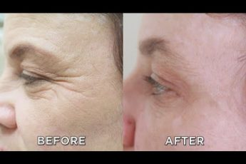 Overnight Wrinkle Fix Put to the Test!